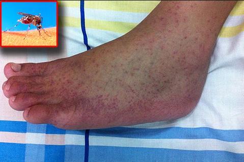 mosquito chikungunya rash